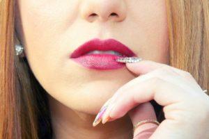 Welche Hyaluronsäure kommt bei einer Lippenaufspritzung zum Einsatz?